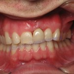 Windy City Smile - Chicago Implant Dentist2jpg 1