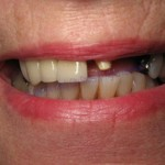 Windy City Smiles - Chicago Dentist - Implants1 1