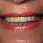 Windy City Smiles - Chicago Dentist - Implants2 1
