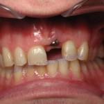Windy City Smiles - Chicago Implant Dentist1 1